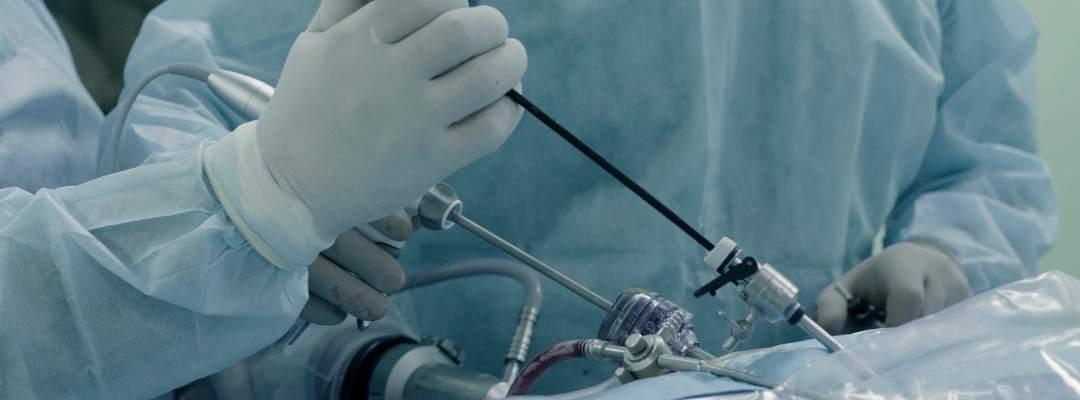 Laparoskopik Prostat Kanseri Ameliyatı