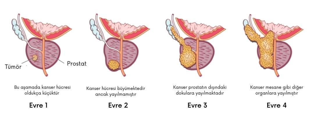 Prostat Kanseri 4.evre