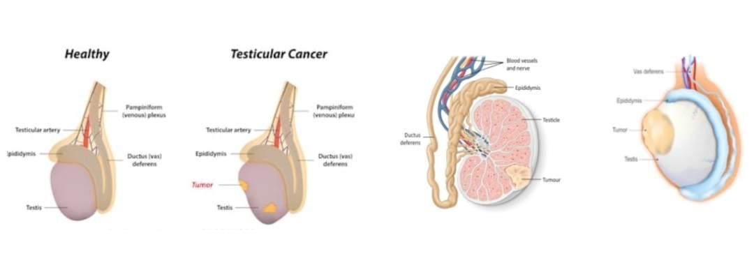 testis kanseri evre
