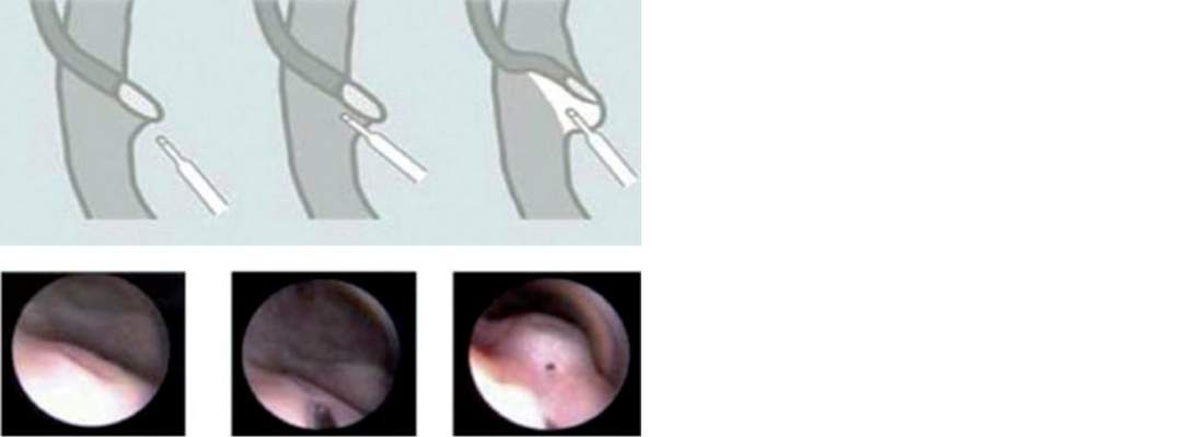 Vezikoüreteral Reflü böbrek reflüsü