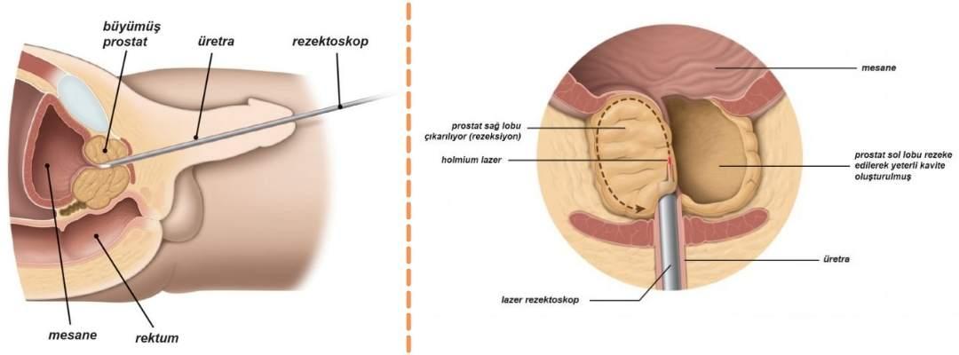 HoLEP Ameliyatı
